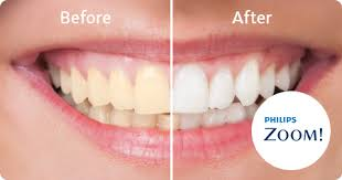 Image of before and after zoom teeth whitening