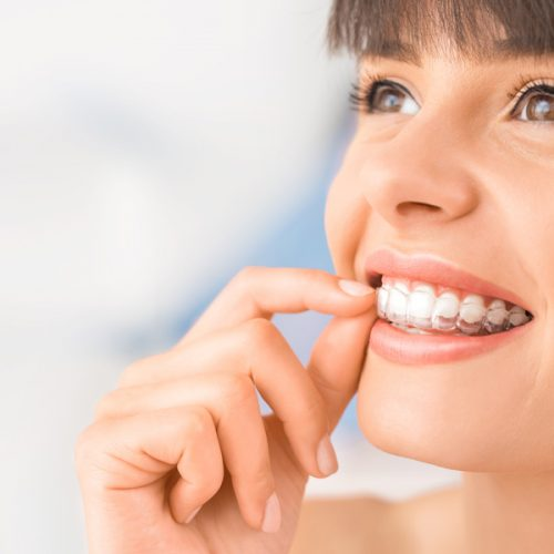 Image of girl with invisalign clear aligner